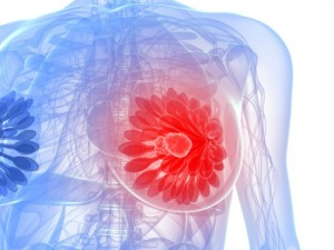 A digital illustration of a breast tumor