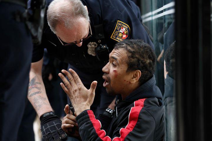 Baltimore Man Hurt During Protest