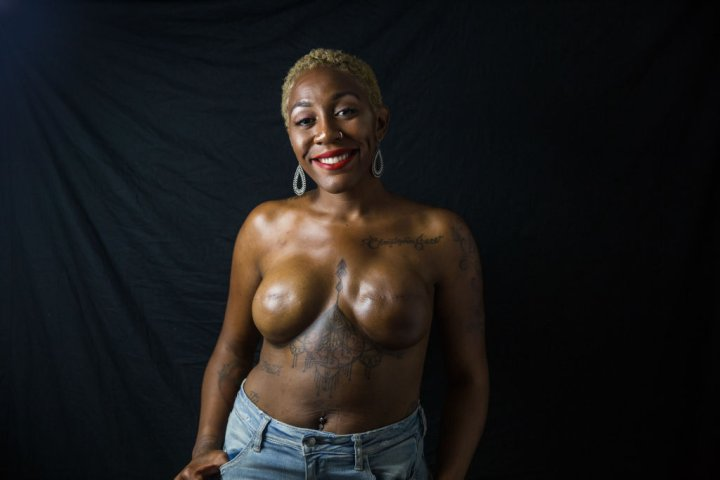 Posing Topless With A Double Mastectomy
