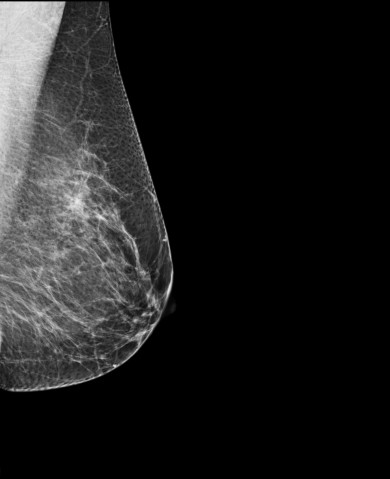 Breast Mammography, X-ray of woman's breast for early identification of breast cancer