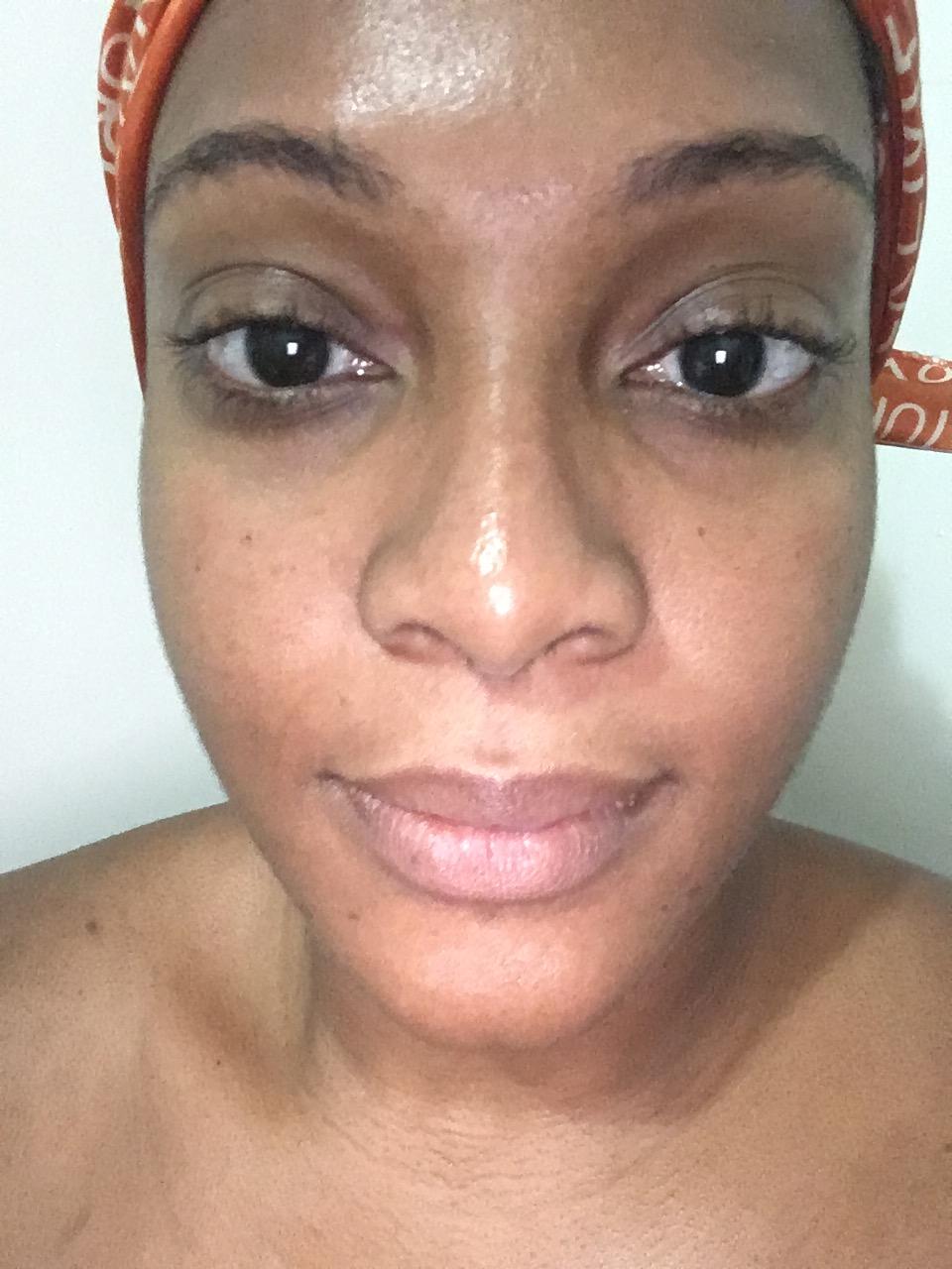 Danielle James - Laser Facial