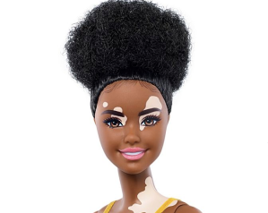 Barbie New Additions Vitiligo, Disabilities
