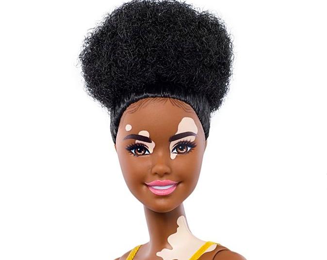 Barbie New Additions Vitiligo, Disabilities