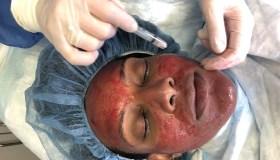 Vampire Facial aka PRP Facial