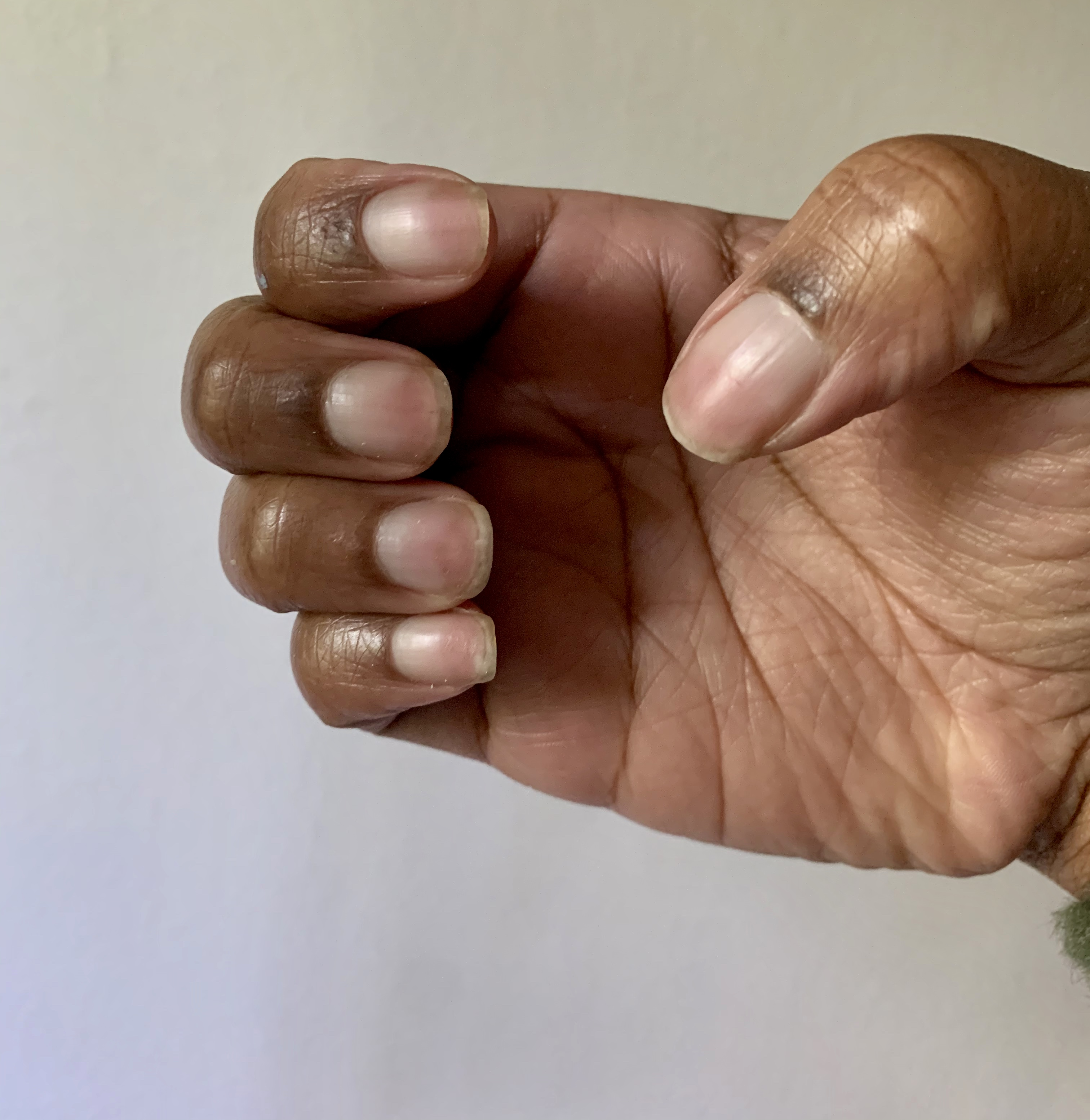 Before and After nail images