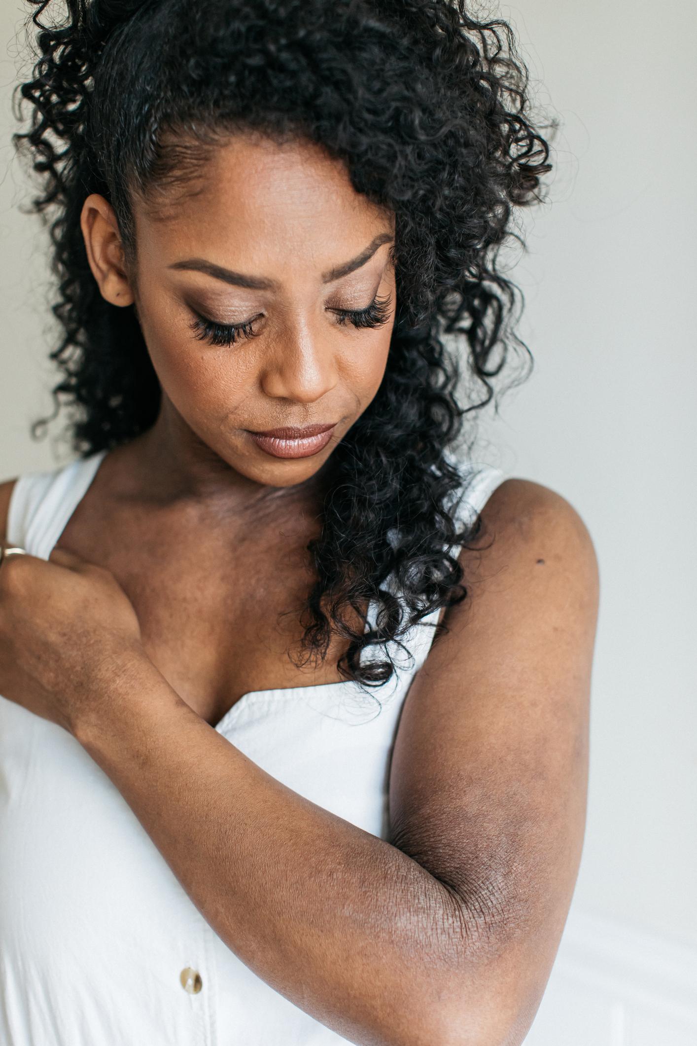 Embracing my skin, my eczema