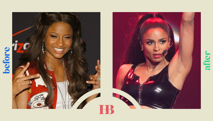 """Ciara's Before and After """"Plastic Surgery"""""""