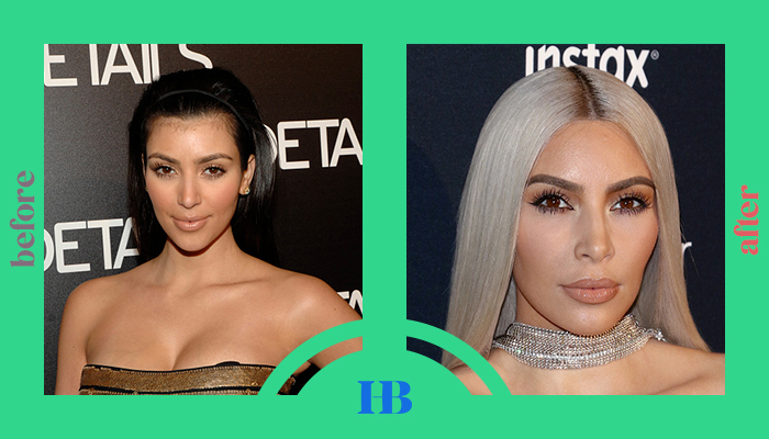 """Kim Kardashian's Before and After """"Plastic Surgery"""""""