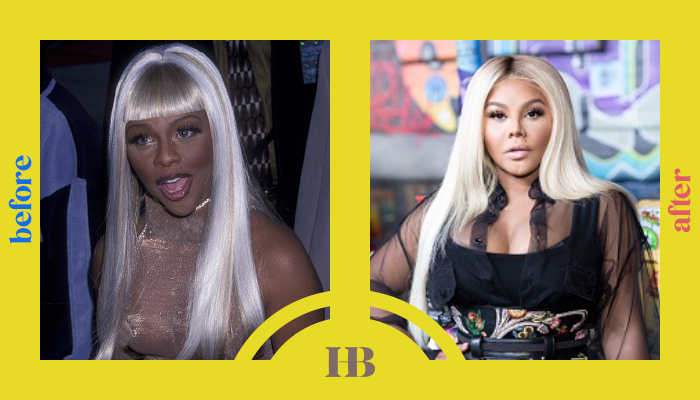 """Lil Kim's Before and After """"Plastic Surgery"""""""