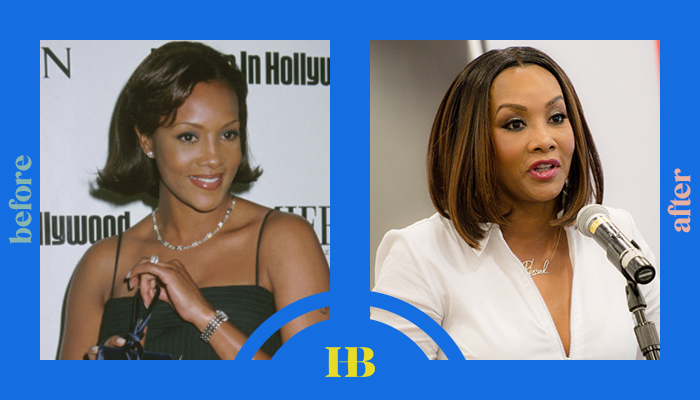 """Vivica A. Fox's Before and After """"Plastic Surgery"""""""