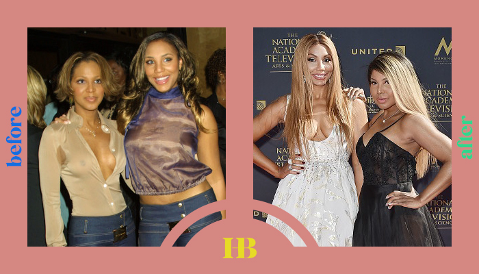 """Toni and Tamar Braxton's Before and After """"Plastic Surgery"""""""