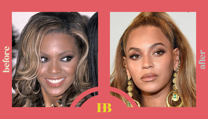 """Beyonce's Before and After """"Plastic Surgery"""""""