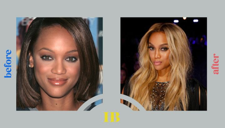 """Tyra Bank's Before and After """"Plastic Surgery"""""""