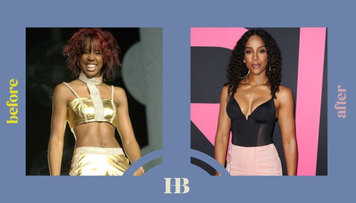 """Kelly Rowland's Before and After """"Plastic Surgery"""""""