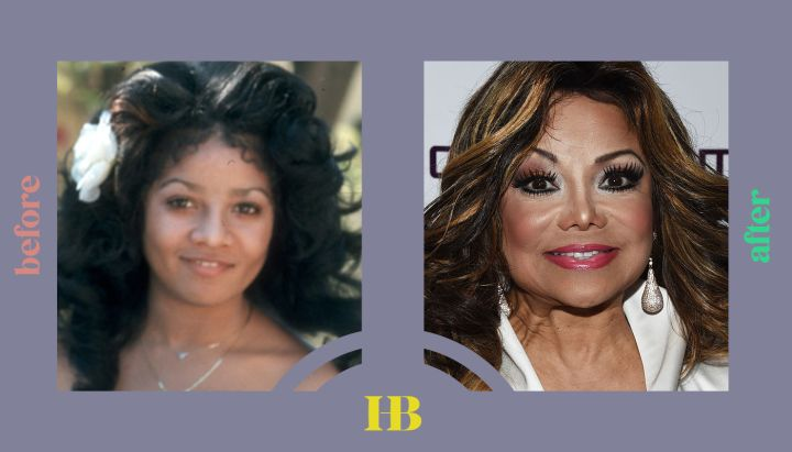 """Latoya Jackson's Before and After """"Plastic Surgery"""""""