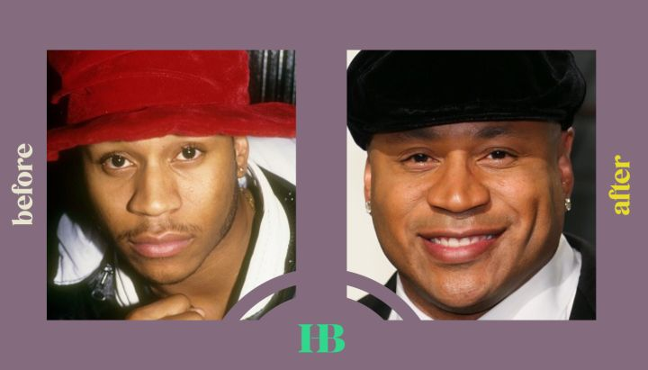 """LL Cool J's Before and After """"Plastic Surgery"""""""